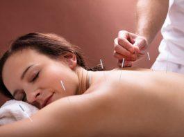 Best Acupuncturists in New York