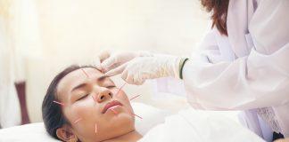 best Acupuncturists in Chicago