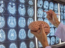 Best Neurosurgeons in Chicago