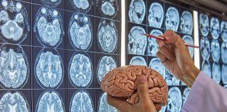 Best Neurosurgeons in New York