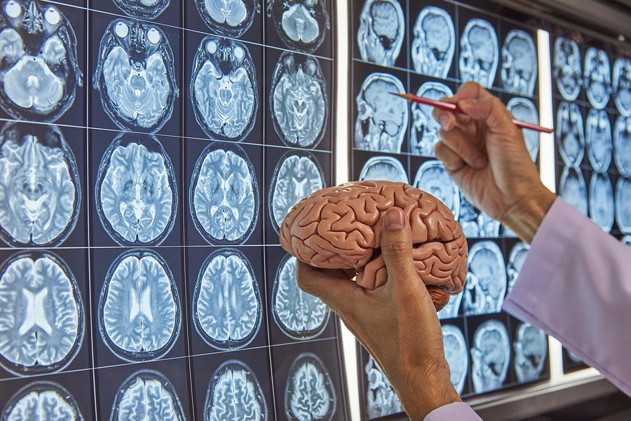 5 Best Neurosurgeons in New York – Neurosurgeons