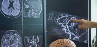 Best Neurologists in Philadelphia