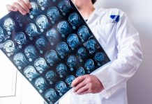 Best Neurologists in San Diego