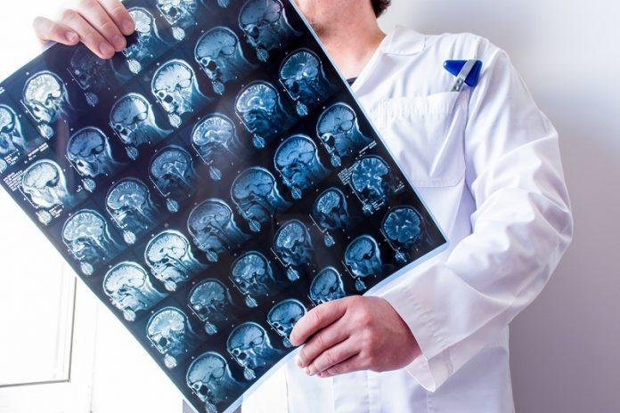 Best Neurologists in San Diego