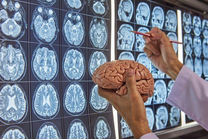 Best Neurosurgeons in San Jose