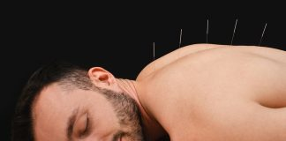 5 Best Acupuncturists in Charlotte