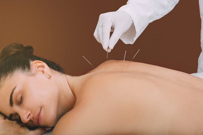 5 Best Acupuncturists in Indianapolis