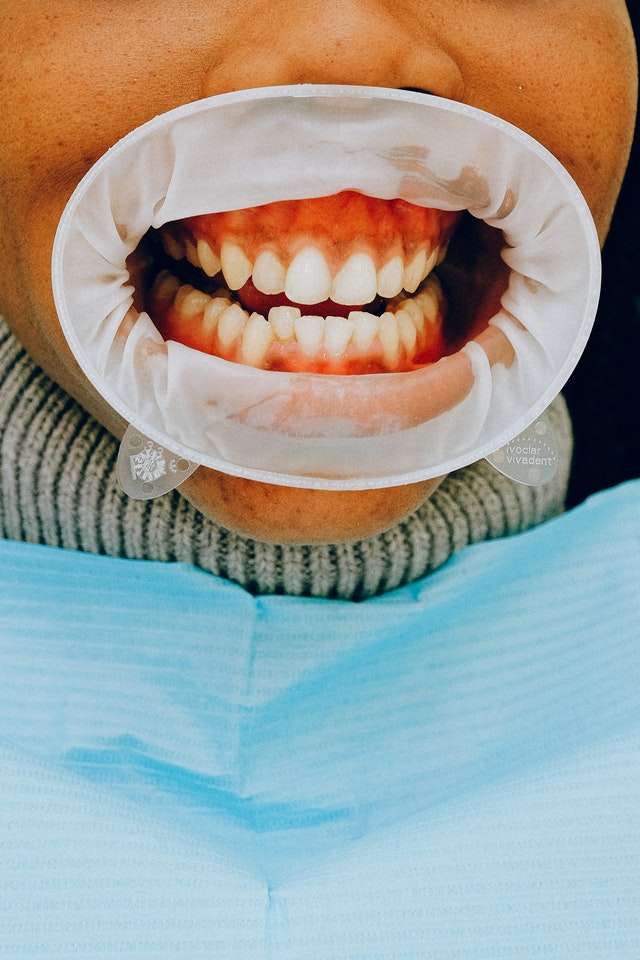 5 Best Orthodontists in San Antonio