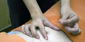 5 Best Acupuncture in Houston