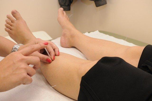 5 Best Acupuncture in Phoenix