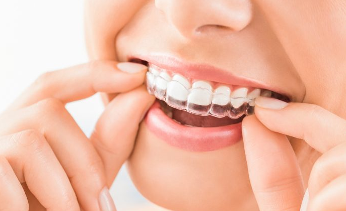5 Best Orthodontists in Indianapolis