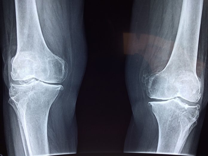 5 Best Orthopediatrician in Fort Worth