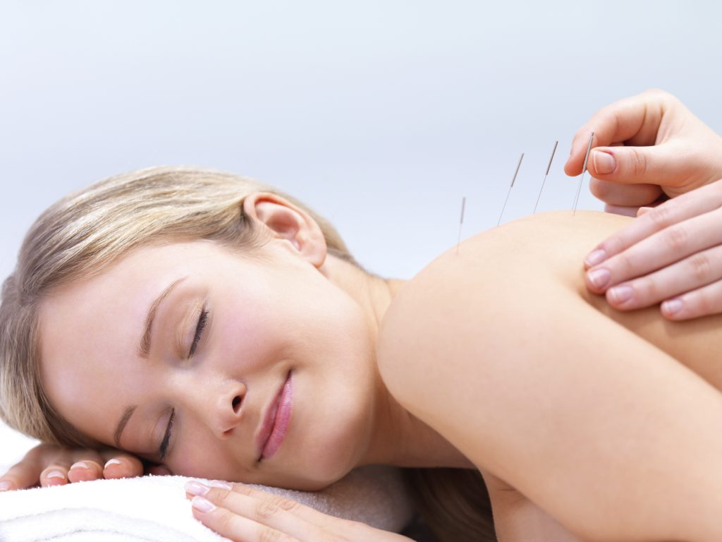 True Acupuncture Phoenix Arizona