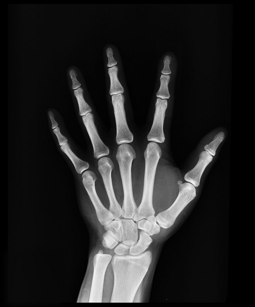 Source: Pexels
