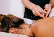 5 Best Acupuncture in Jacksonville
