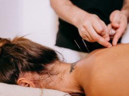 5 Best Acupuncture in Jacksonville