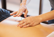 5 Best Acupuncture in Fort Worth