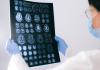 5 Best Neurologists in San Francisco