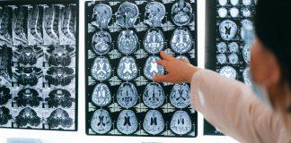 Best Neurosurgeons in Jacksonville