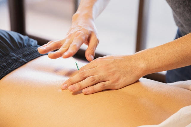 5 Best Acupuncture in Los Angeles, CA