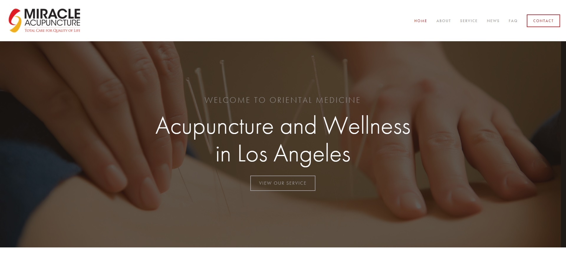 The Best Acupuncture in Los Angeles, CA