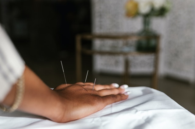 5 Best Acupuncture in San Francisco