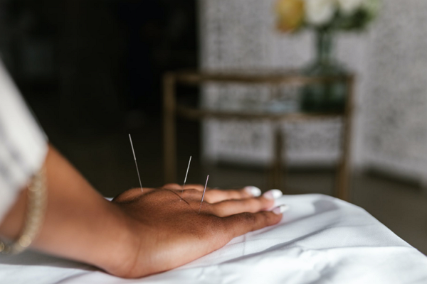 Good Acupuncture in Sacramento