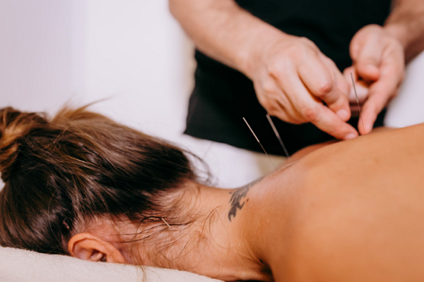 Top Acupuncture in Sacramento