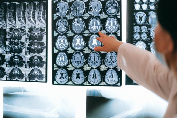 Best Neurologists in Portland