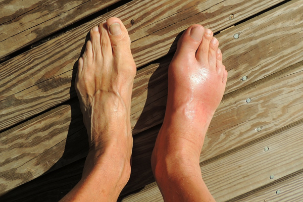 Top Podiatrists in St. Louis