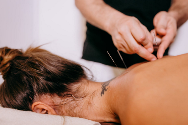 Top Acupuncture in Fresno