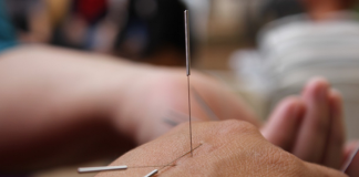 Best Acupuncture in Oklahoma City