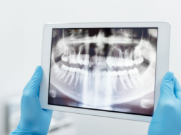 Best Cosmetic Dentists in Memphis