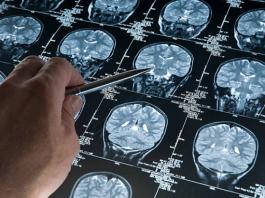Best Neurologists in Denver