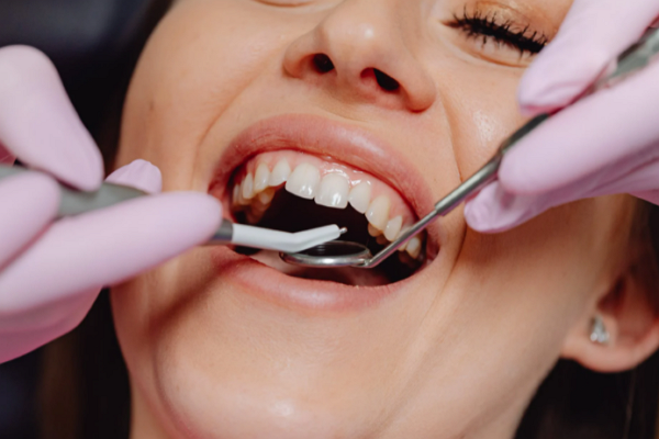Cosmetic Dentists in Memphis