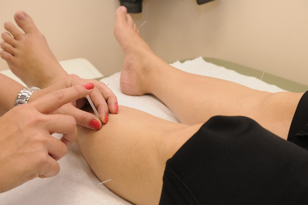 Good Acupuncture in Oklahoma City