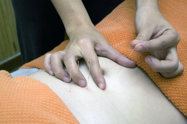 One of the best Acupuncture in Oklahoma City