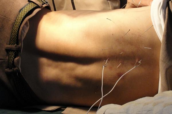 Acupuncture Oklahoma City